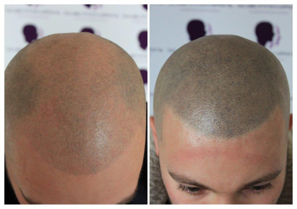 SMP-8 Home -The Scalp  & Micro-pigmentation Experts Swindon