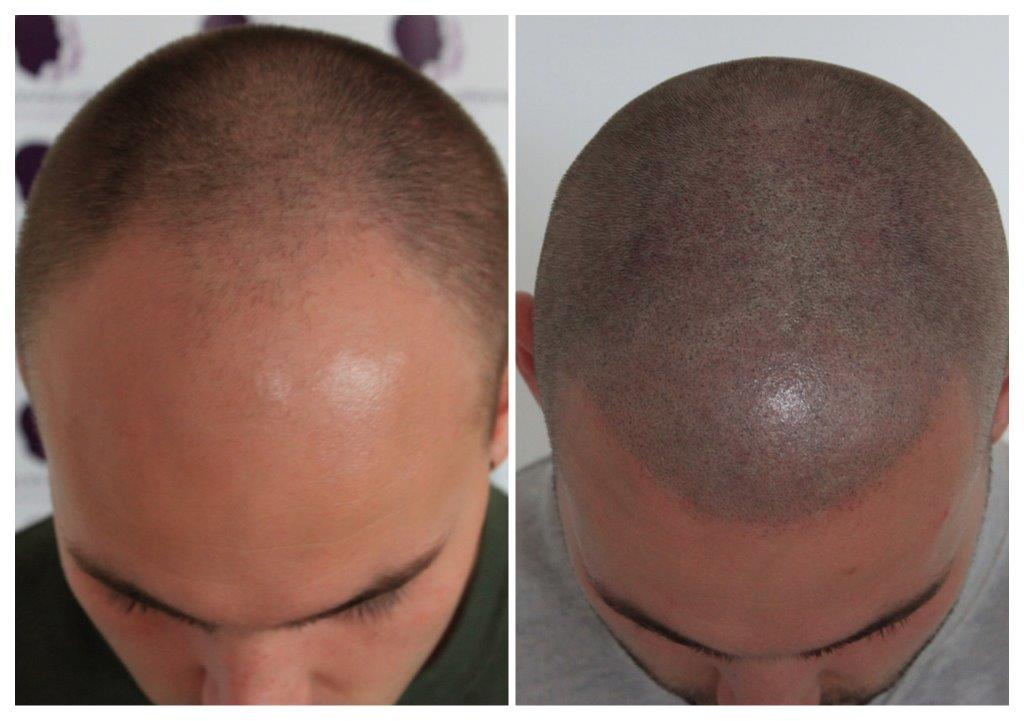 Shaved-12 Treatments -The Scalp  & Micro-pigmentation Experts Swindon