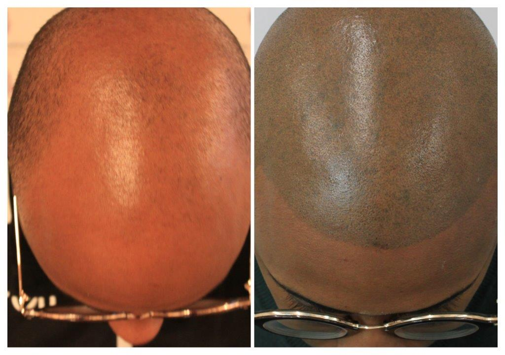 Shaved-20 Home -The Scalp  & Micro-pigmentation Experts Swindon