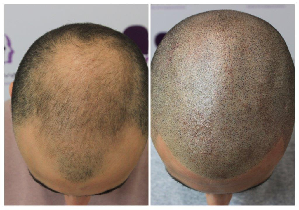 Shaved-21 Home -The Scalp  & Micro-pigmentation Experts Swindon